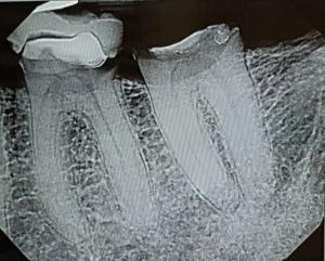 teeth_51009
